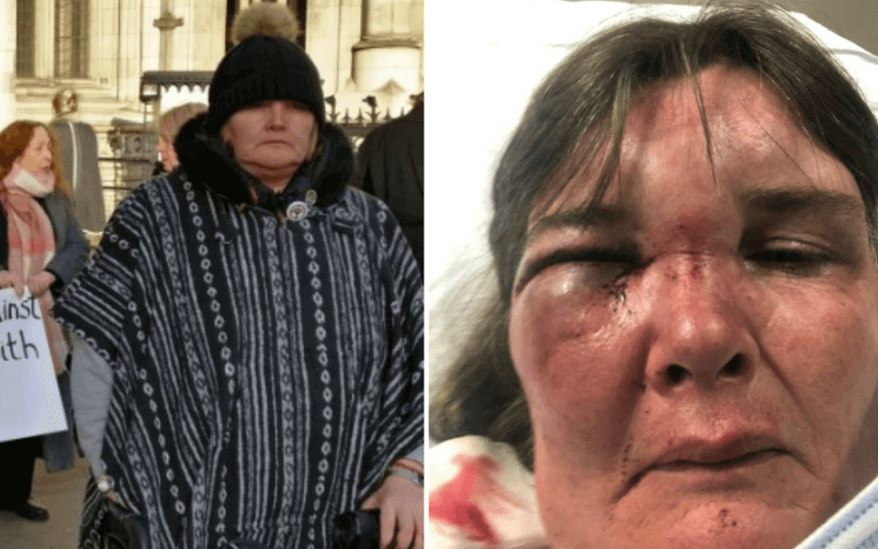 Two pictures of a woman, one with dreadful bruising to her face